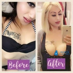 Zam Herbal Pdts For Butt,Hips,Breast,Legs & Thighs Boosting Call +27710732372 Durban